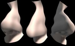 鼻中隔偏曲的常见症状-重庆最好的耳鼻喉医院