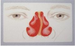 鼻中隔偏曲的常见症状危害-鼻中隔偏曲的鉴别诊断