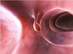 重庆耳鼻喉科医院排名_声带息肉的症状表现