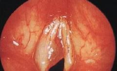 咽喉息肉一定要手术切除吗?