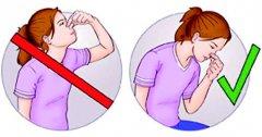 鼻出血怎么办?小心4种错误的止血方式