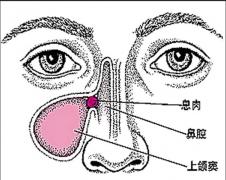 重庆耳鼻喉医院排名-鼻息肉的症状