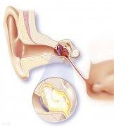 慢性化脓性中耳炎怎么治疗